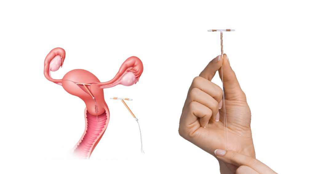 Copper Paragard IUD